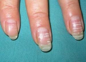 Белые пятна на ногтях - сигнал о проблемах со здоровьем человека