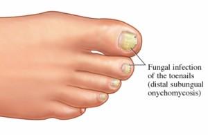 Микозы ногтей ног требуют терпения и длительного лечения