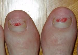 Травмы ногтей становятся причиной их неправильного роста