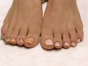 Под воздействием лаков ногти могут изменить свой цвет