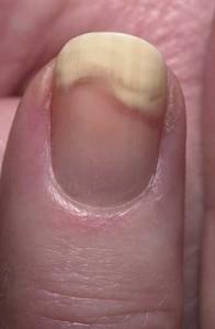 Грибковые болезни на ногтях рук нужно лечить комплексно, пройдя осмотр у миколога