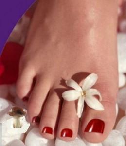 Грибок ногтей на ногах - одна из самык распространенных инфекций