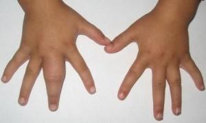 Припухлость пальца - один из симптомов нарыва