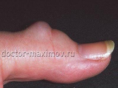 нарост на суставе пальца руки фото