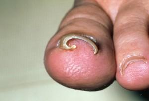Врастанию ногтя мы обязаны тесной обуви или неправильному педикюру