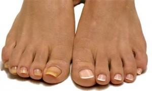 Не стоит под лаком скрывать желтизну ногтей, так как причиной этого явления могут быть серьезные проблемы со здоровьем