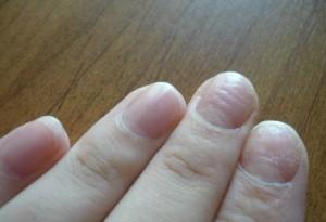 Ногти могут стать волнистыми даже после простуды