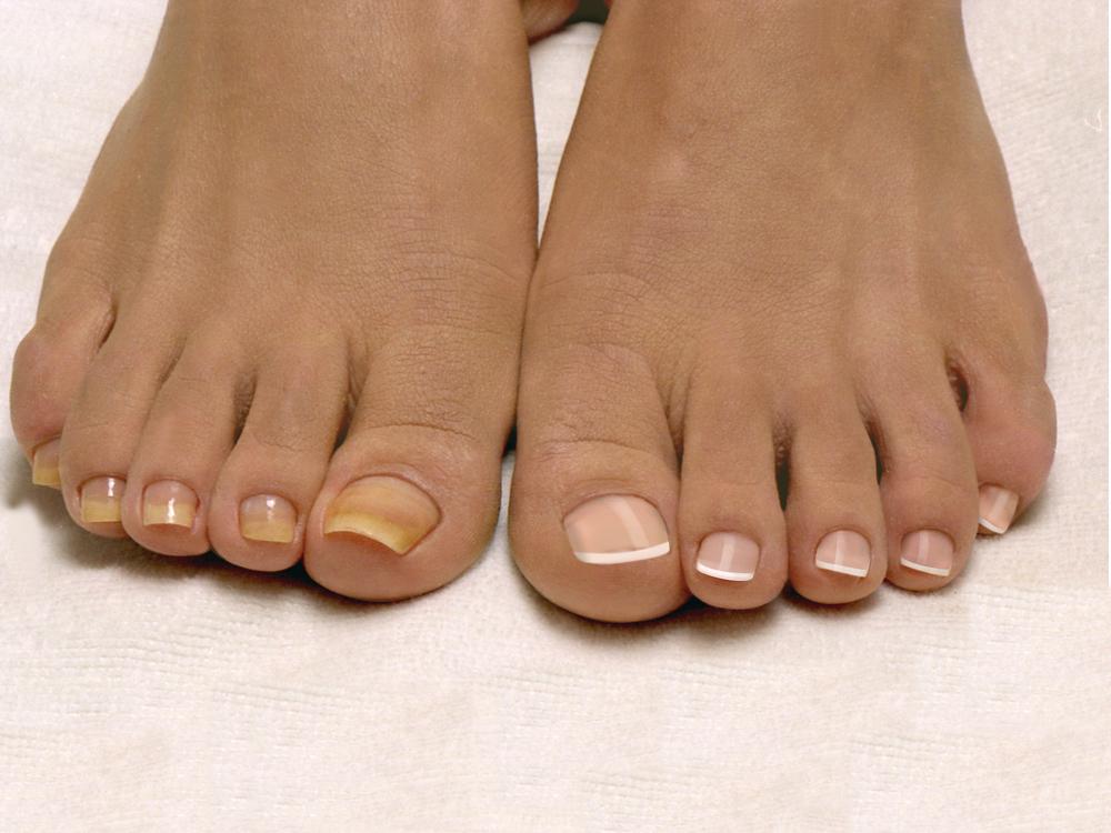 Почему желтеют ногти на ногах | О ногтях: http://www.onogtyax.ru/bolezni-nogtey/pochemu-zhelteyut-nogti-na-nogah.html