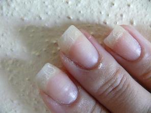 Ногти могут слоиться из-за генетической предрасположенности
